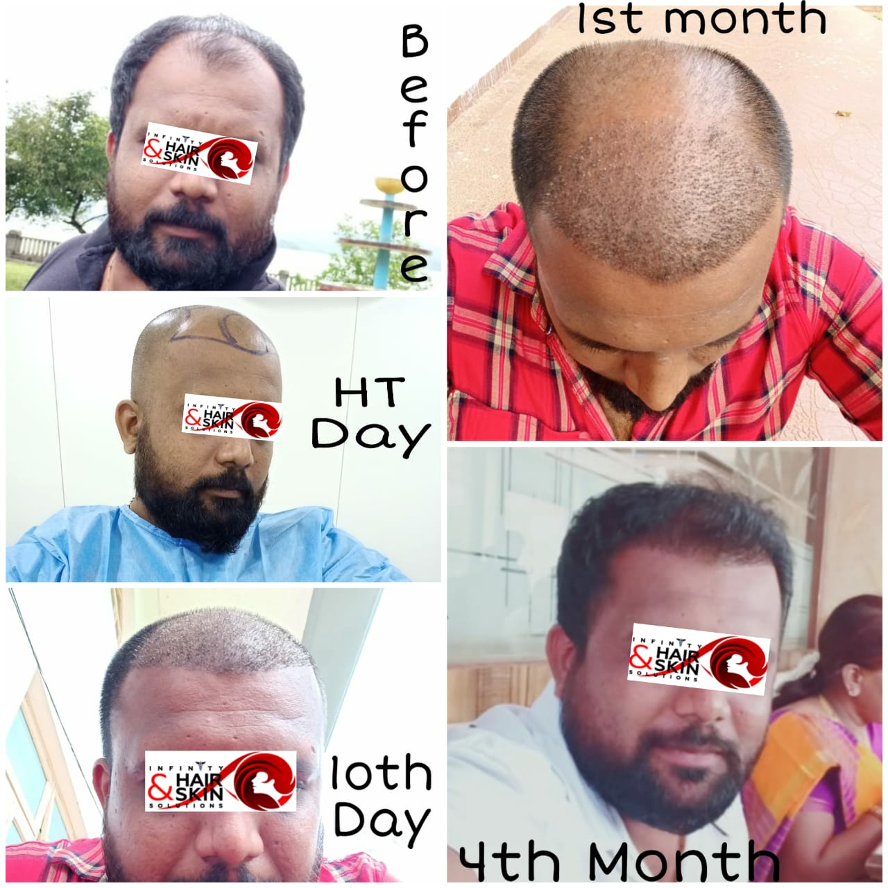 OUR HAIR GROWTH TREATMENT RESULTS