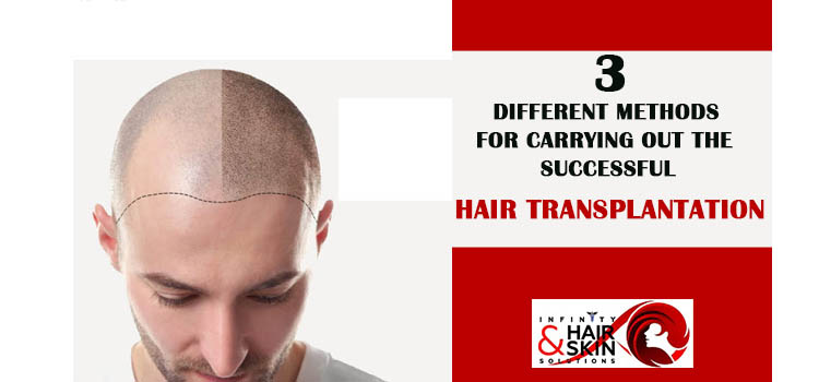 3 Different methods for carrying out the successful hair transplantation