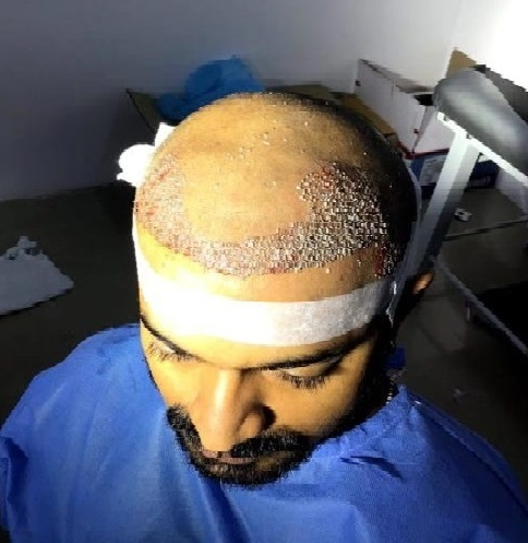 Ultimate Guide On Bio FUE Hair Transplant