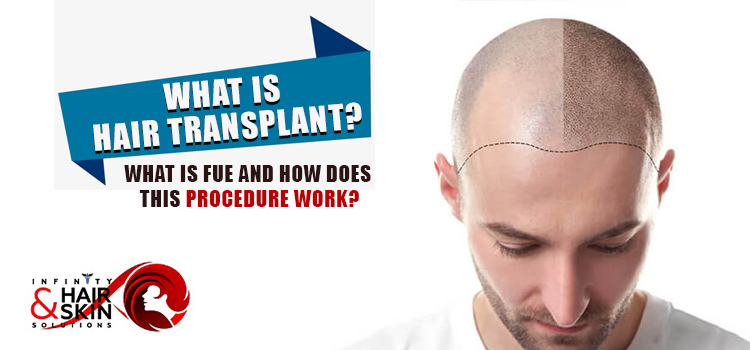 What is hair transplant? What is FUE and how does this procedure work?