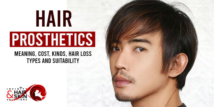 Hair prosthetics - Meaning, Cost, Kinds, Hair loss types and Suitability