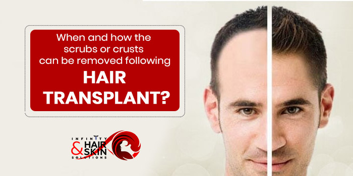 When and how the scrubs or crusts can be removed following hair transplant?