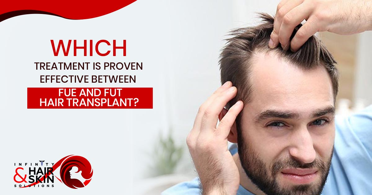 Both FUE and FUT hair transplant methods are highly in demand and people can contact with our team of experts. For permanent results patients can go with FUE hair transplant.