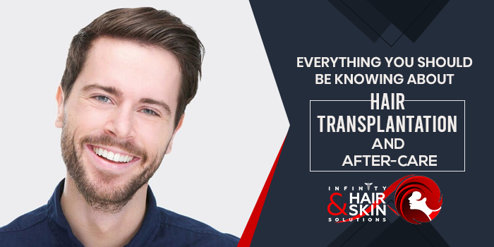 Everything-you-should-be-knowing-about-Hair-transplantation-and-After-care