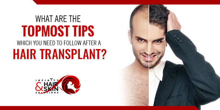 What are the topmost tips which you need to follow after a hair transplant