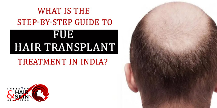 What is the step-by-step guide to FUE hair transplant treatment in India