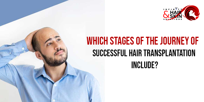 Which stages of the journey of successful hair transplantation include