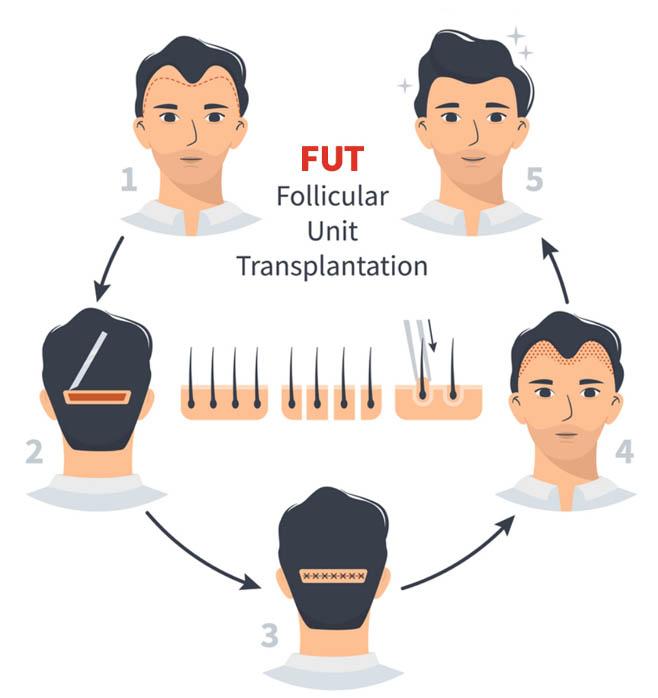 FUT Hair Transplant in India
