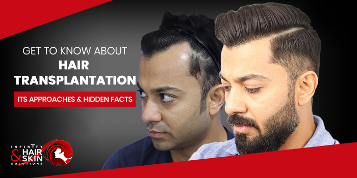 hair transplantation, its approaches and hidden facts 2021