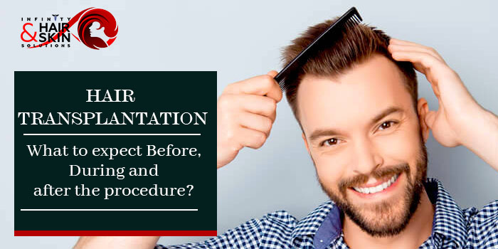 Hair transplantation What to expect Before, During and after the procedure