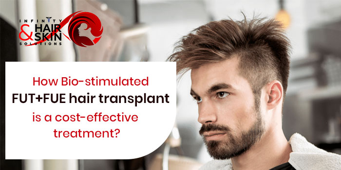 How Bio-stimulated FUT+FUE hair transplant is a cost-effective treatment