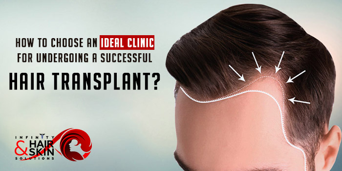 How to choose an ideal clinic for undergoing a successful hair transplant