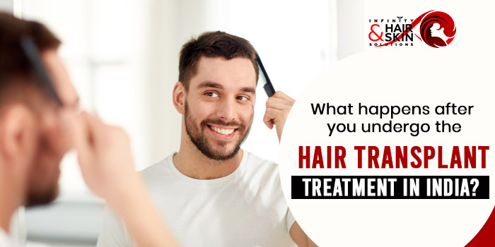What happens after you undergo the hair transplant treatment in India
