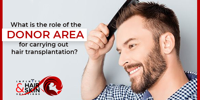 What is the role of the donor area for carrying out hair transplantation