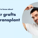 Everything you need to know about 5000 hair grafts for hair transplant