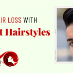 Why are undercut hairstyles famous? How can this help to hide hair loss?
