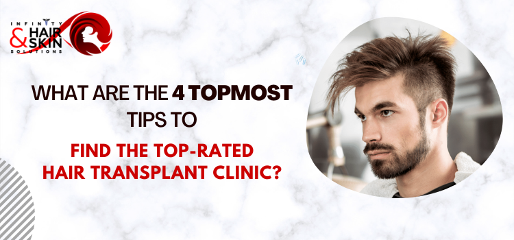 What are the 4 topmost tips to find the top-rated hair transplant clinic?