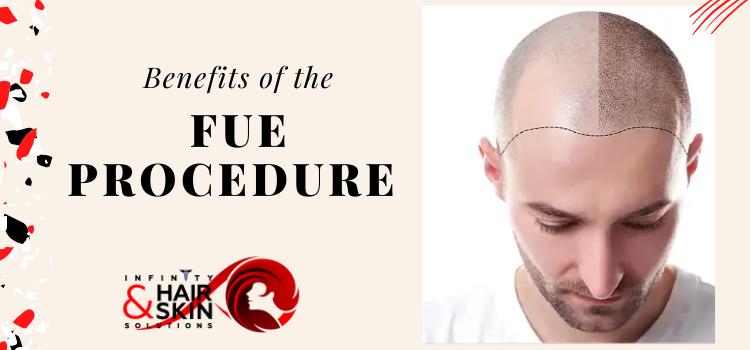 Benefits of the FUE procedure
