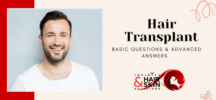 Hair Transplants - Basic Questions & Advanced Answers