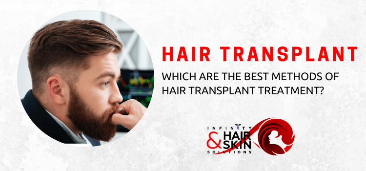 Hair transplant: Which are the best methods of hair transplant treatment?