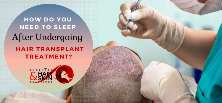 How do you need to sleep after undergoing hair transplant treatment?