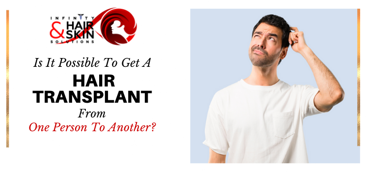 Is it possible to get a hair transplant from one person to another?