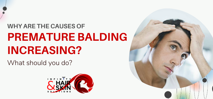 Why are the causes of premature balding increasing? What should you do?