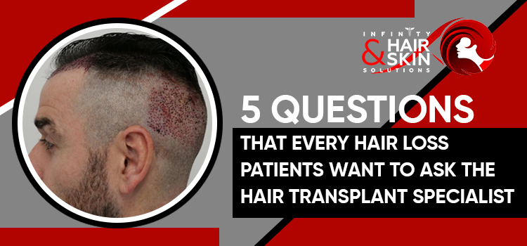 5 Questions That Every Hair Loss Patients Want To Ask The Hair Transplant Specialist