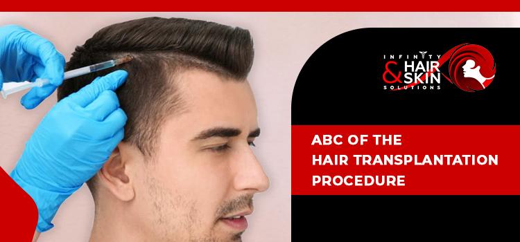 ABC of the hair transplantation procedure